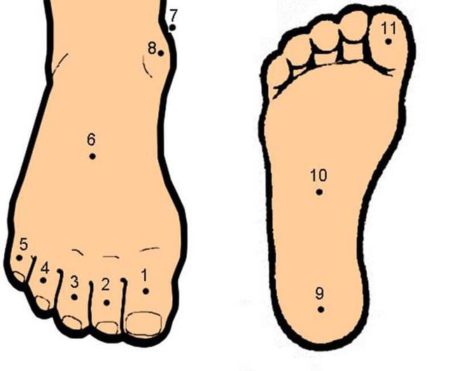 Ý nghĩa nốt ruồi dưới lòng bàn chân thể hiện điều gì?