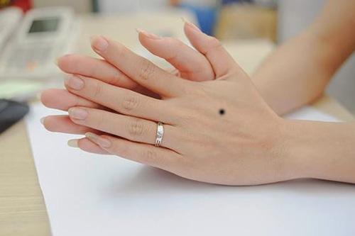 Tổng hợp những ý nghĩa nốt ruồi bàn tay